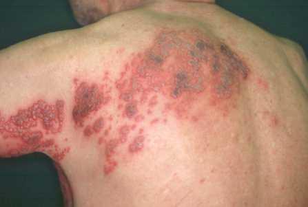 帯状 疱疹